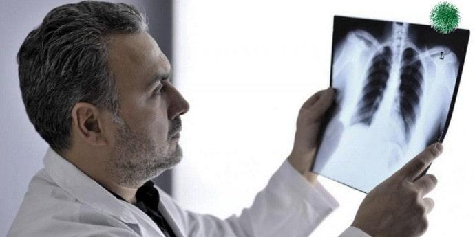 Диагноз рак легких